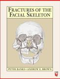 Fractures of the Facial Skeleton, Brown, Andrew E. and Banks, Peter, 0723610347