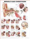 Middle Ear Conditions Anatomical Chart, Anatomical Chart Company Staff and Biederman, 1605470961