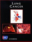 Lung Cancer, Ginsberg, Robert J., 1550090992