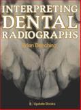 Interpreting Dental Radiographs, Beeching, Brian, 0906141206