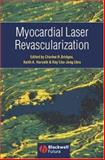 Myocardial Laser Revascularization, , 1405122102