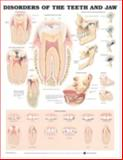 Disorders of the Teeth and Jaw Anatomical Chart, Anatomical Chart Company Staff, 1587792494