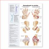 The Understanding Arthritis Anatomical Chart in Spanish, Anatomical Chart Company Staff, 0781773032