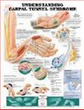 Understanding Carpal Tunnel Syndrome Anatomical Chart, Anatomical Chart Company Staff, 1587793210