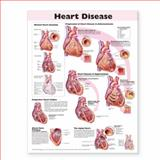 Heart Disease Paper Chart, Anatomical Chart Company Staff, 0781773377