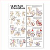 Hip and Knee Inflammations, Anatomical Chart Company Staff, 0781773458