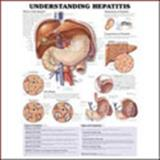 Understanding Hepatitis Anatomical Chart, Anatomical Chart Company Staff, 1587794187