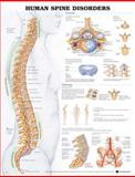The Human Spine Disorders, Anatomical Chart Company Staff, 1587794438