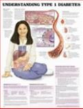 Understanding Type 1 Diabetes Anatomical Chart 9781587794841