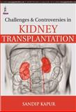 Challenges and Controversies in Kidney Transplantation, Kapur, Sandip, 9351525252
