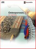Osteoporosis : An Overview, Focus Medica, 981420627X