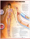 Deep Vein Thrombosis Anatomical Chart, Anatomical Chart Company Staff, 1587796708