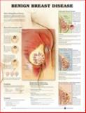 Benign Breast Disease, Anatomical Chart Company Staff, 1587796740