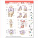 Athletic Injuries of the Knee Anatomical Chart, Anatomical Chart Company, 0781786754
