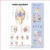 Knee Injuries Anatomical Chart, Anatomical Chart Company Staff, 1587796961