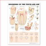 Disorders of the Teeth and Jaw Anatomical Chart, Anatomical Chart Company Staff, 1587797178