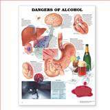 Dangers of Alcohol Anatomical Chart, Anatomical Chart Company Staff, 1587797186