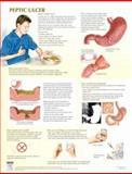 Peptic Ulcer Chart, Frank H. Netter MD, 1933247215