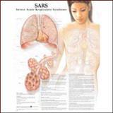 Severe Acute Respiratory Syndrome Anatomical Chart, Anatomical Chart Company Staff, 1587797526