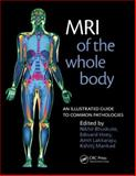 MRI of the Whole Body : An Illustrated Guide to Common Pathologies, Bhuskut, Nikhil and Hoey, Edward, 1853157767