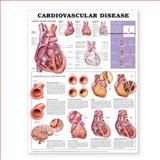 Cardiovascular Disease Anatomical Chart, Anatomical Chart Company Staff, 1587798409