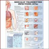 Sexually Transmitted Infections Anatomical Chart, , 1587798492