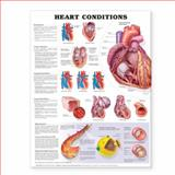 Heart Conditions, Anatomical Chart Company, 1587798832