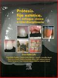 Prótesis Fija Estética 9788481749168