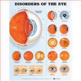Disorders of the Eye Anatomical Chart, Anatomical Chart Company Staff, 1587799243