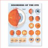 Disorders of the Eye Anatomical Chart, Anatomical Chart Company Staff, 1587799251