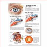 Understanding Glaucoma Anatomical Chart, Anatomical Chart Company Staff, 1587799294