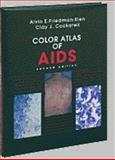Color Atlas of AIDS, Friedman-Kien, Alvin E., 0721649491