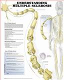 Understanding Multiple Sclerosis Anatomical Chart, Anatomical Chart Company Staff, 1587799723
