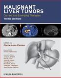 Malignant Liver Tumors 9781405179768