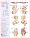 Rheumatology 3-Chart Set, Lippincott  Williams & Wilkins, 1469869861