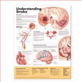 Understanding Stroke, Anatomical Chart Company Staff, 158779988X