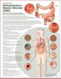Gastroenterology 4-Chart Set, Lippincott Williams and Wilkins Staff, 1469869926