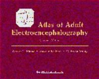 Atlas of Adult Electroencephalography, Blume, Warren T. and Kaibara, Masako, 0781729963